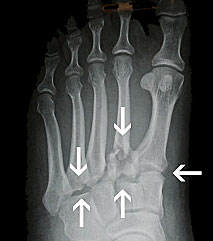 Lisfranc Fracture, Midfoot fracture, University Foot and Ankle Institute