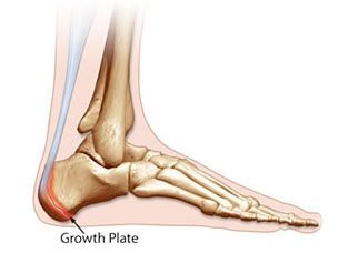 Growth Plate Injuries, University Foot and Ankle Institute