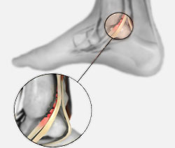 Posterior Tibial Tendon Injury