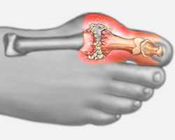 Arthritis of the Toes and Feet - University Foot and Ankle Institute