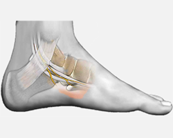 Tarsal Tunnel Syndrome Treatments