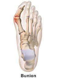Bunion - University Foot and Ankle Institute - Los Angeles
