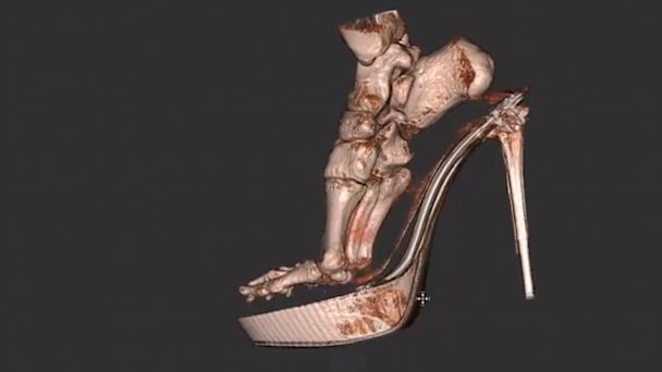High Heel Foot Xray