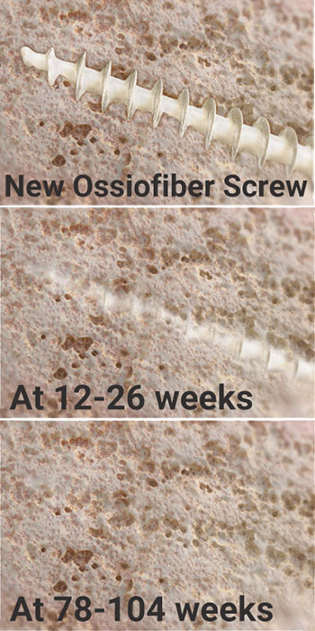 Ossiofiber surgical screw