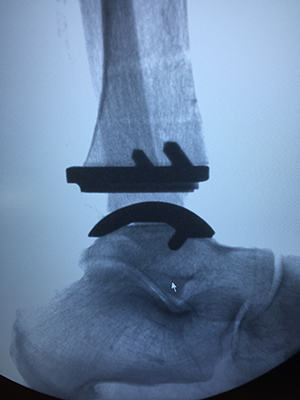 Wright Infinity Prophecy implant, University Foot and Ankle Institute