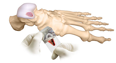 deNovo for Cartilage replacement, University Foot and Ankle Insitute Los Angeles