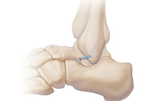 Internalbrace for Chronic Ankle Instability
