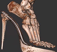 pedCAT 3D CT Scan in heels