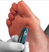 Diabetic Foot Care, Charcot Foot,  Los Angeles