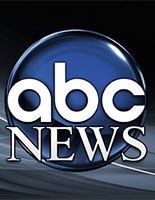 ABC News, Cartiva Implant, Toe Arthritis Treatment, Los Angeles
